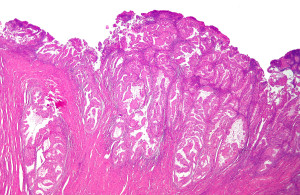 Endometrial (uterine} cancer. Photo courtesy of Wikimedia Commons