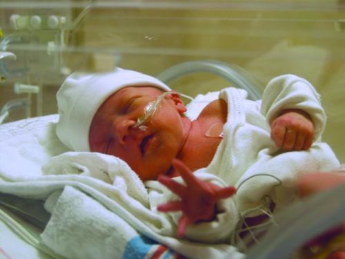 A baby in a neonatal intensive care unit. Photo courtesy Miracle Babies