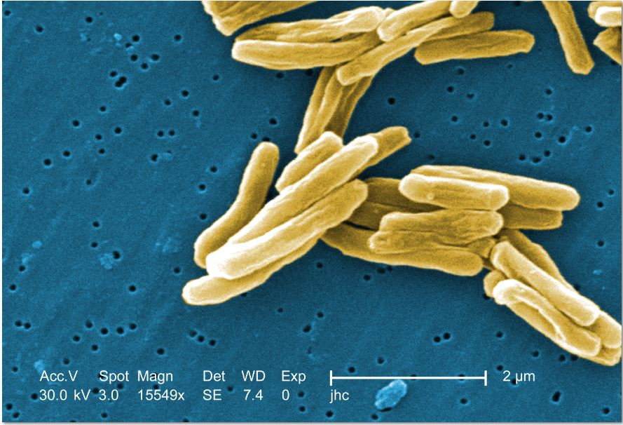 Microscopic image of Mycobacterium tuberculosis bacteria. Photo credit: Centers for Disease Control.