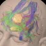 Brain Cancer Surgery UCSD