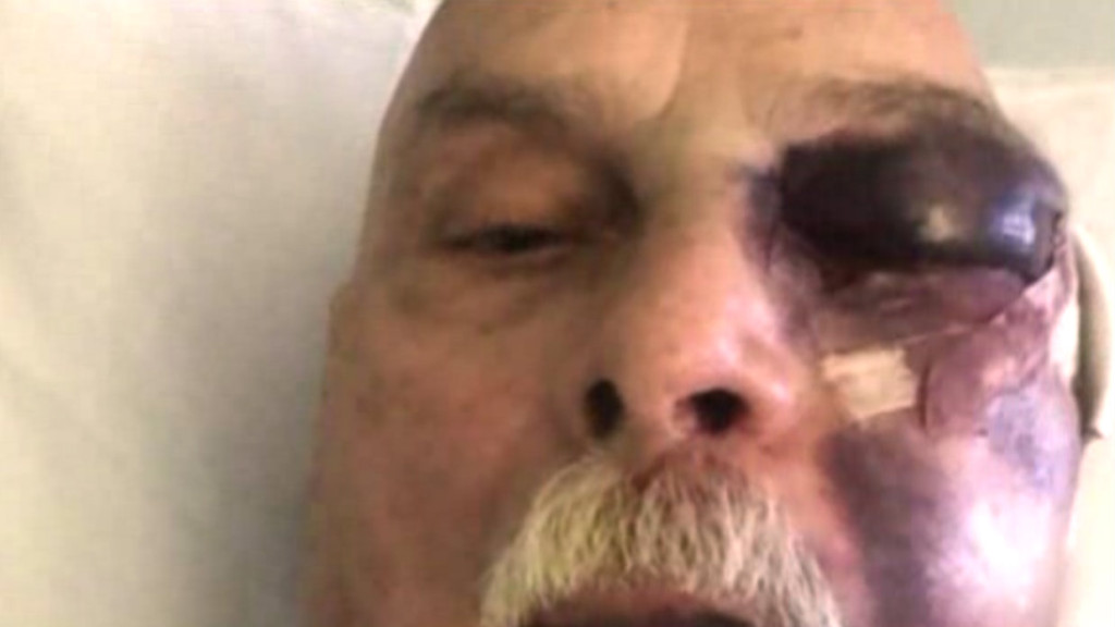 Ron Torncello, after his April 30 attack by a man apparently motivated by road rage. Photo credit: Fox5SanDiego.com.