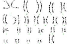 Chromosome 11 deletion