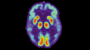 PET scan of the brain of a person with Alzheimer's disease showing a loss of function in the temporal lobe. Photo by National Institute on Aging via Wikimedia Commons