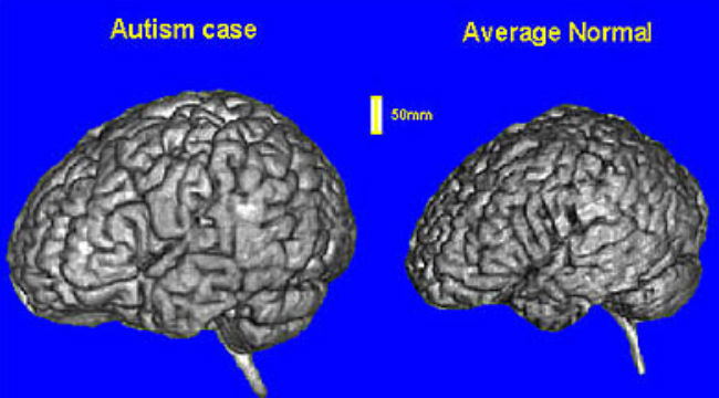 More Accurate Autism Test Possible, Thanks to UCSD Experts