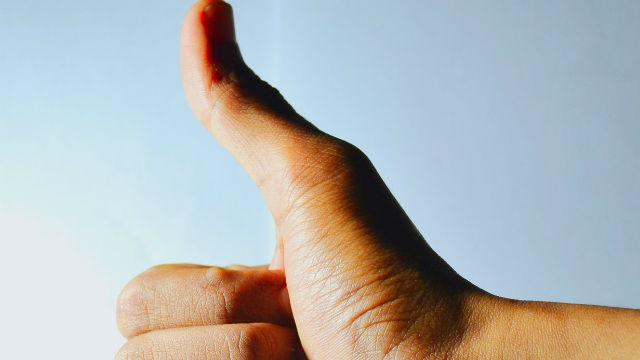 thumb-up-