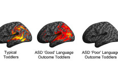 "Image depicts patterns of brain activation in typically developing, ASD ""Good"" and ASD ""Poor"" language ability toddlers in response to speech sounds during their earliest brain scan (ages 12-29 months). Photo courtesy of UCSD News Center"