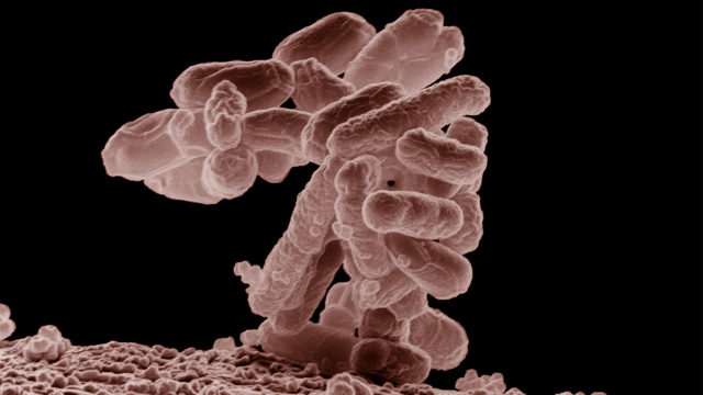 An electron micrograph of a cluster of E. coli bacteria, magnified 10,000 times. Photo Via Wikimedia Commons.