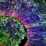 Brain organoid