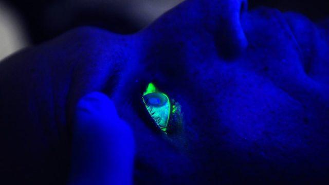 A black light illuminates a man's eye after he received fluorescein drops during an exam. (U.S. Department of Defense)