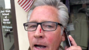 KUSI's Dan Plante suffered scratched nose after altercation with La Mesa shop owner.