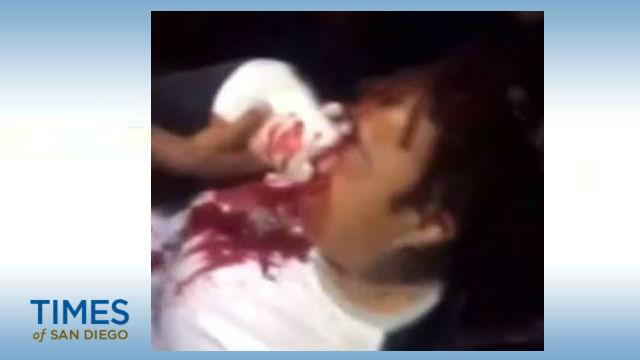 Leslie Furcron bleeding
