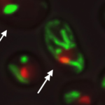 Image of yeast cells